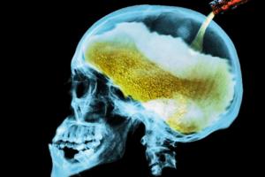 Los efectos del alcohol en el cuerpo humano